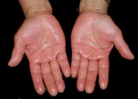 transpiration excessive des mains ou hyperhidrose